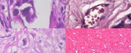 Inteligencia artificial agilizará diagnóstico de cáncer de mama